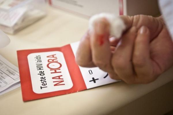 Pacientes com Aids estão vivendo mais no Brasil